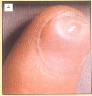 Фото красивый дизайн ногтей гель
